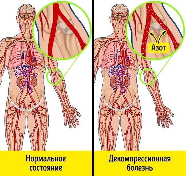 magas légköri nyomású hipertónia)