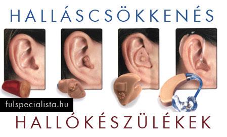 hipertóniával járó fülcsengés okoz kezelést