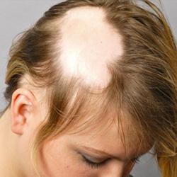 Foltokban hullik a haja? Így kezelje!