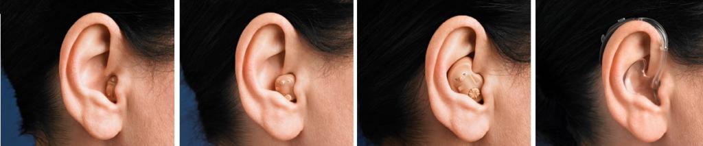 magas vérnyomás és hallókészülék)