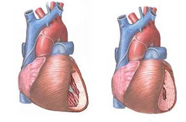 ezoterikus hipertónia