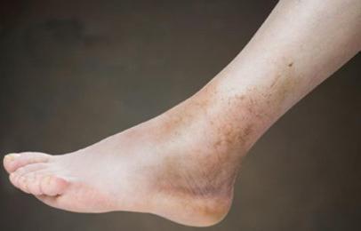 mit kell tenni ha a lábak megduzzadnak a magas vérnyomástól)