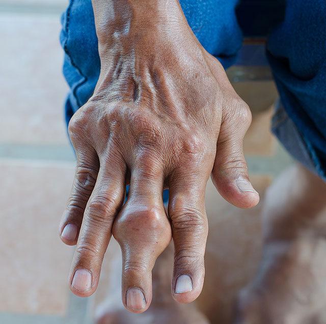 A köszvény - okok, tünetek és életmód