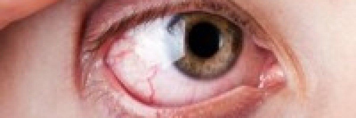 hogyan kezeljük a szem magas vérnyomását