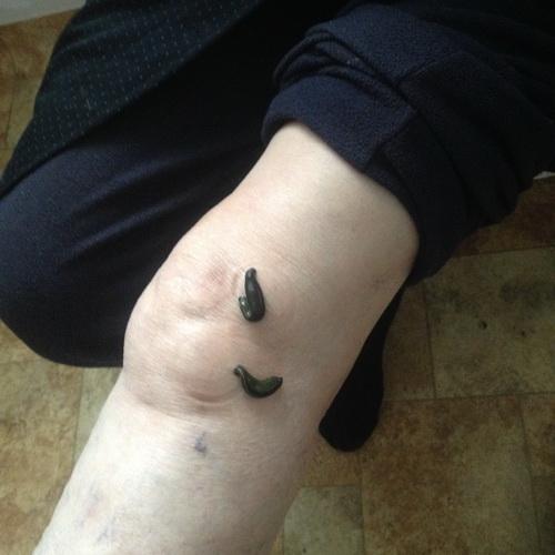 magas vérnyomás fóliás kezelése mikroalbuminuria hipertónia