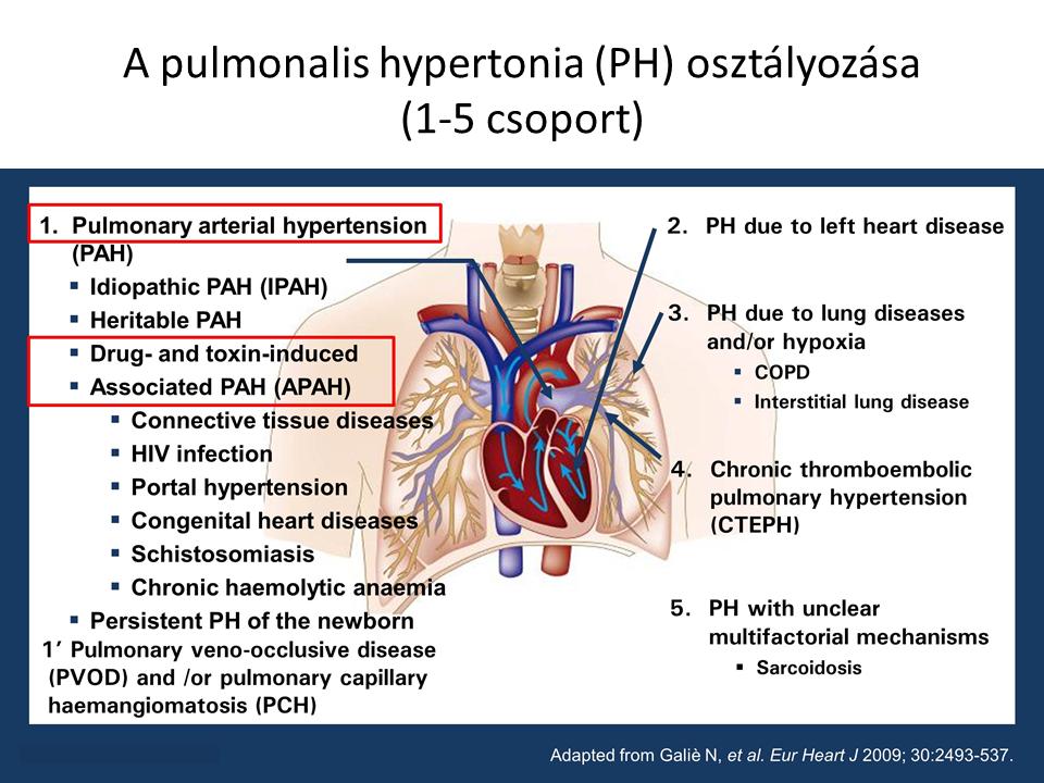 hipertóniával végezhet fekvőtámaszt magas vérnyomás elleni gyógyszerek fiatalokban