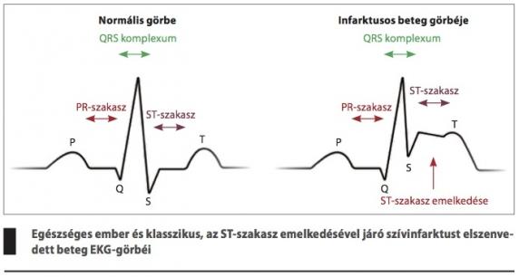 a 2 fokú magas vérnyomás jelei)