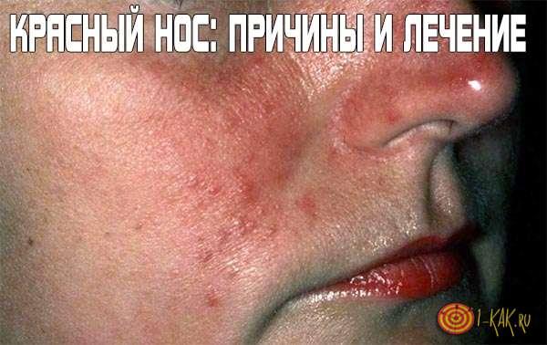 az arc vörössége magas vérnyomással