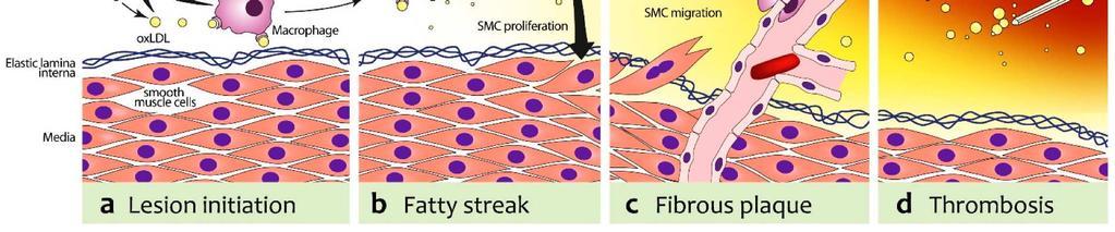 a vérkeringés következményeinek kis körében magas vérnyomás akik meggyógyították az 1 fokozatú magas vérnyomást