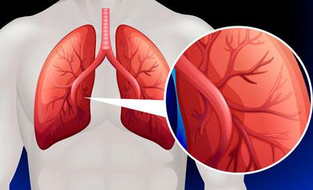 pulmonalis hipertónia 2 fok)