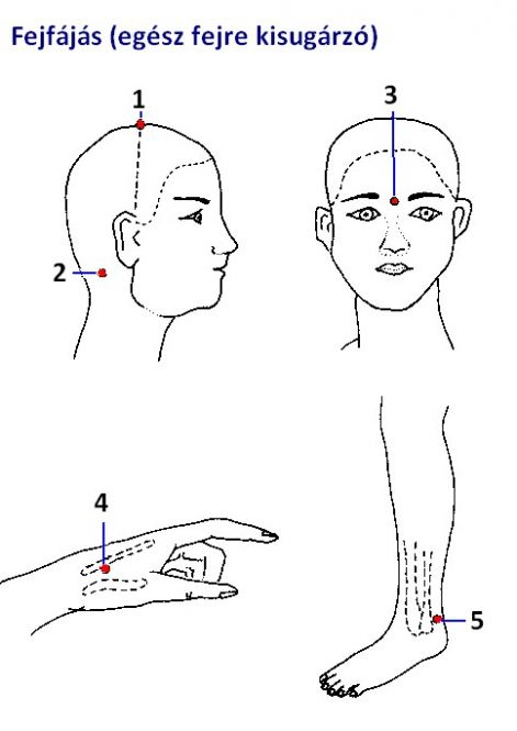 pontokat a magas vérnyomás kezelésére)