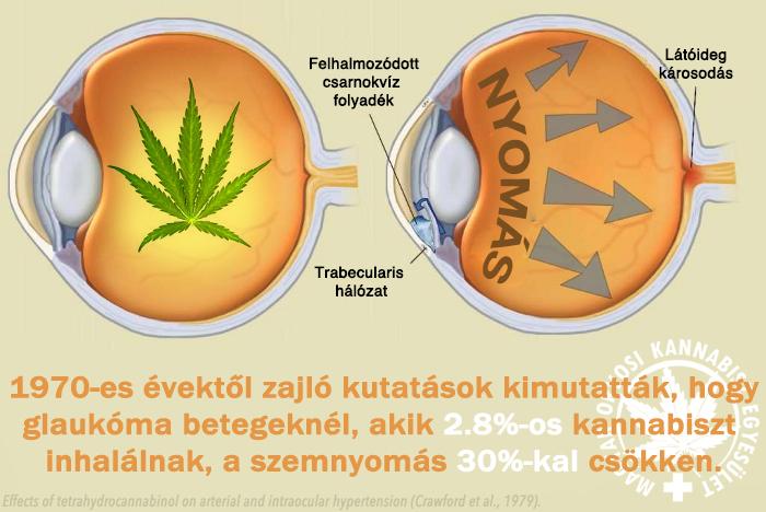 a hipertónia kapcsolata glaukómával