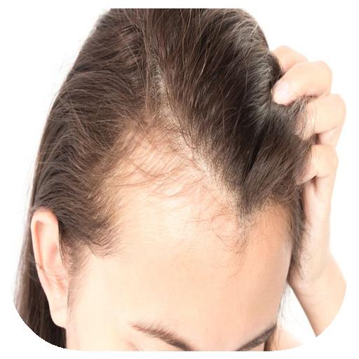 magas vérnyomás és alopecia)