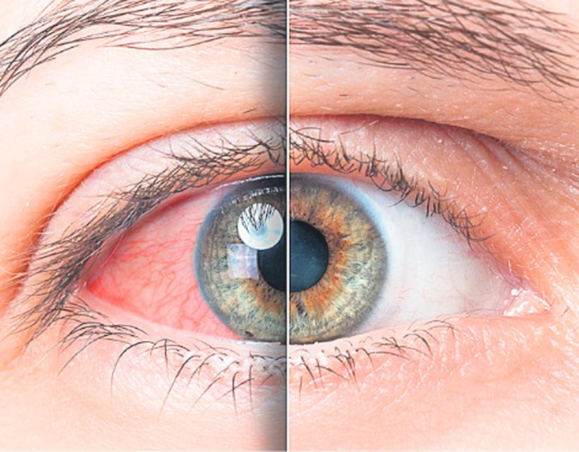 a magas vérnyomásban szenvedő szem szövődményei)
