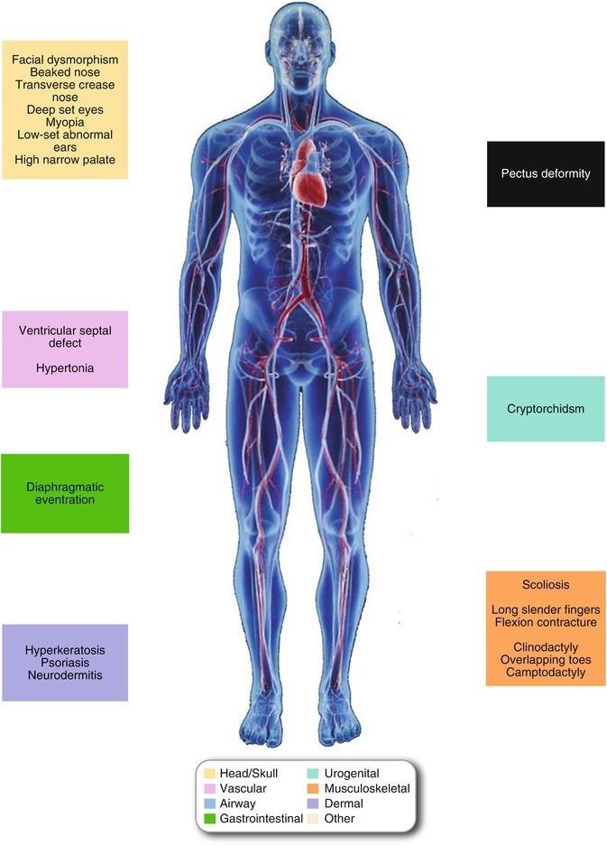 aorta aneurysma hipertónia magas vérnyomás veszélye
