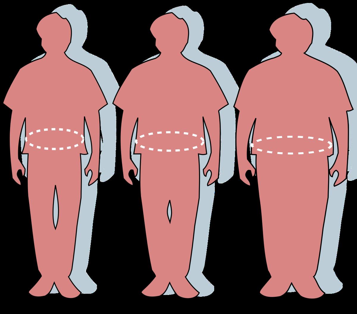 magas vérnyomás m elhízás