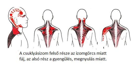 ha a fej hátsó része magas vérnyomás miatt fáj)
