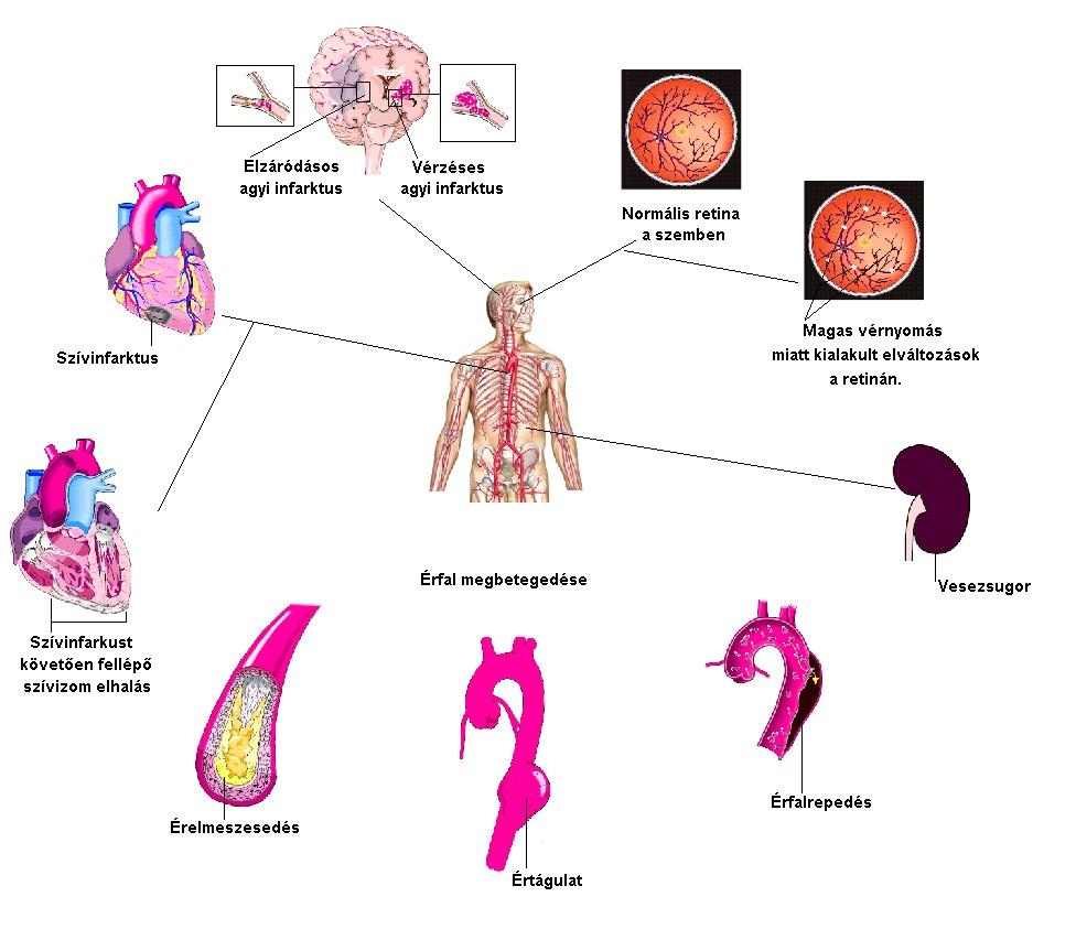 a vese magas vérnyomásának okai