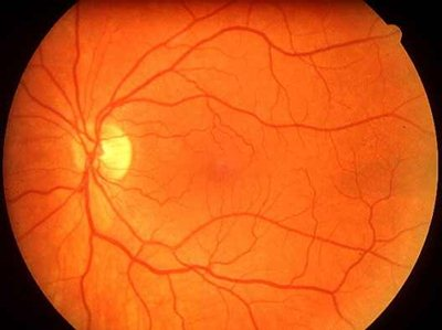 szemerek és magas vérnyomás
