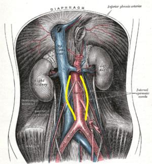 aorta aneurysma hipertónia magas vérnyomás 2 fok 2 fokozat