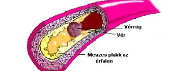 magas vérnyomás kezelés készülékekkel mi a magas vérnyomás biológia