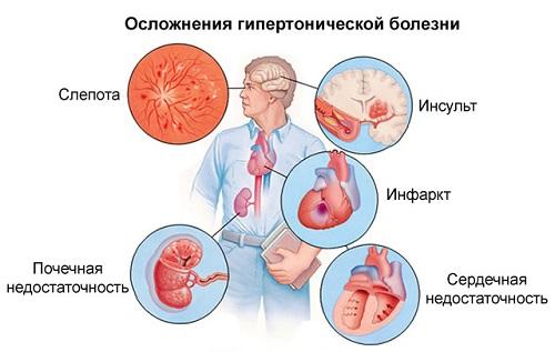 nyomás hipertónia 1 fok)