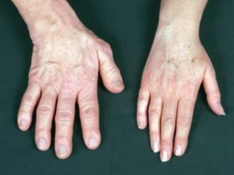 Az akromegália :: Agyalapi mirigy - InforMed Orvosi és Életmód portál :: akromegália, hipofízis