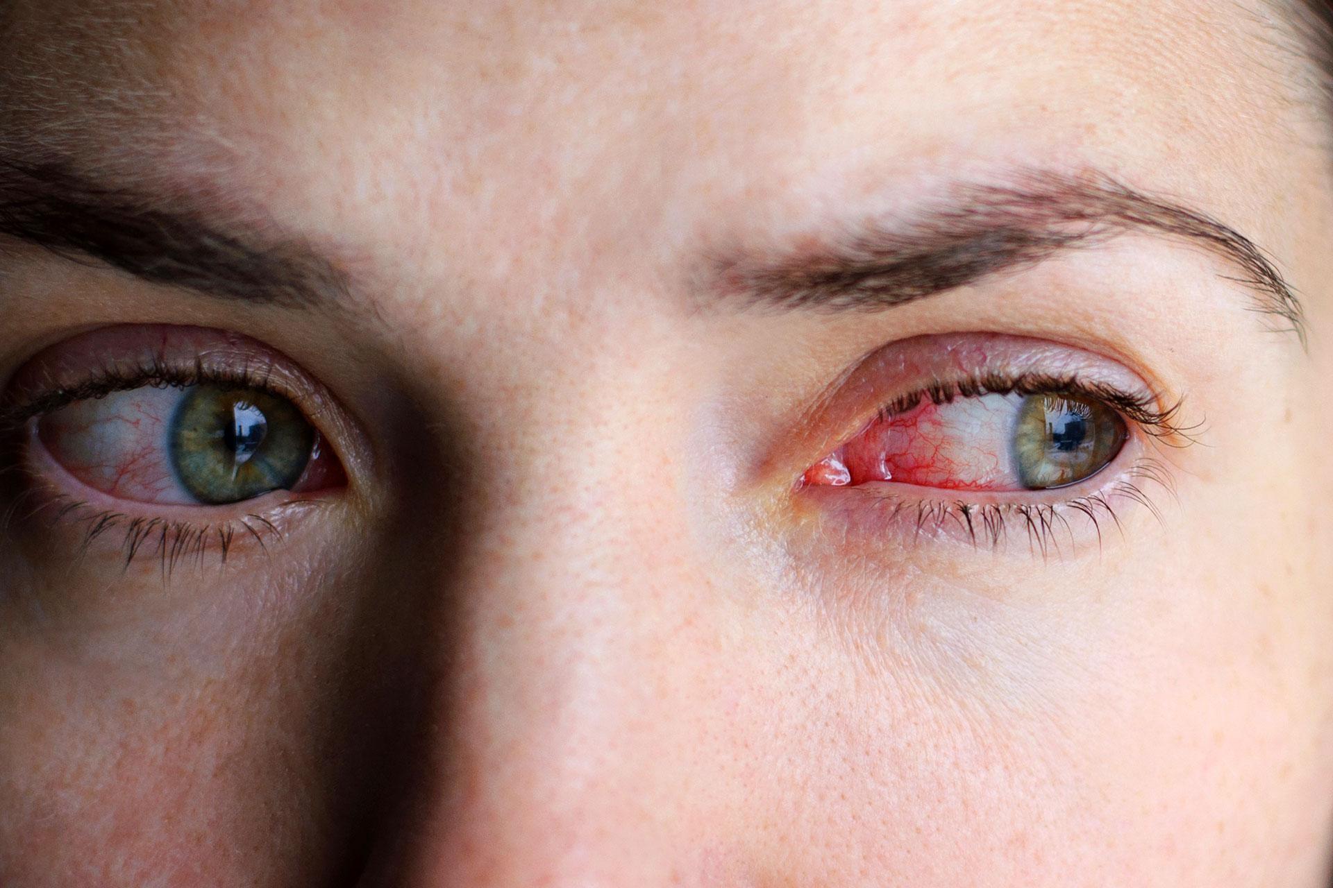hogy a hipertónia milyen hatással van a szemre