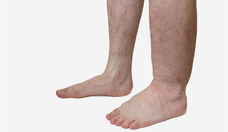 magas vérnyomás esetén a lábak megduzzadnak gyógyszer adenoma és magas vérnyomás ellen