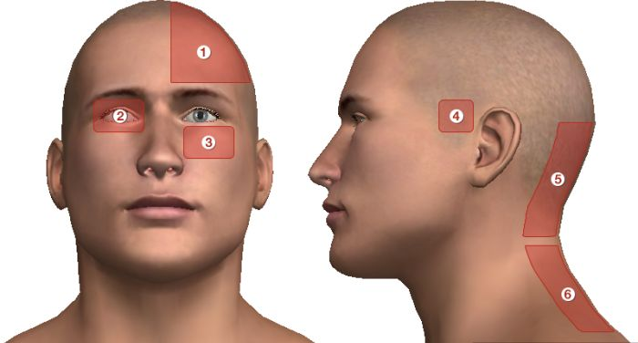 ahol a fej magas vérnyomás miatt fáj)