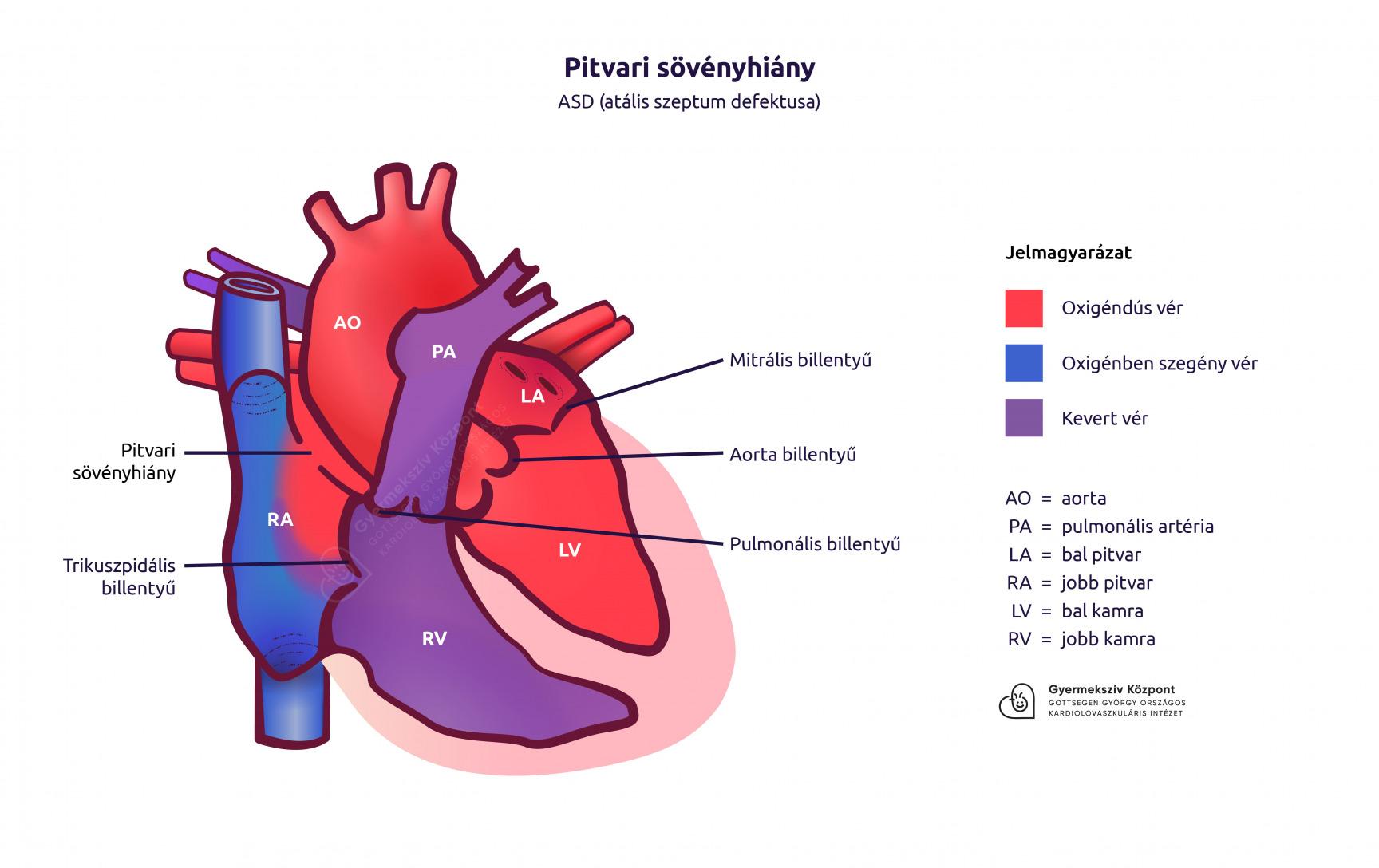 hipertónia rejtjel ízületi műtét magas vérnyomás esetén