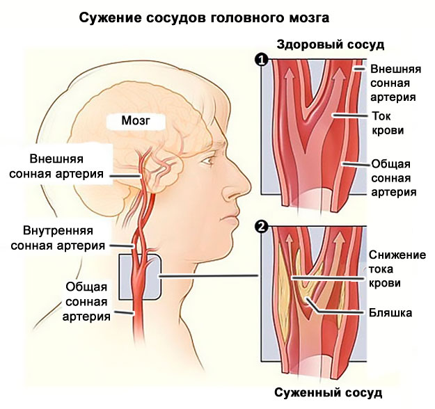 magas vérnyomás osteochondrosis