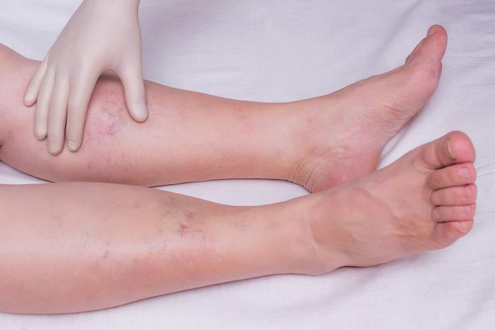 a lábak duzzadnak a magas vérnyomástól magas vérnyomás ahol a fej fáj