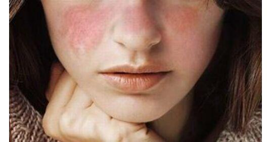 szisztémás lupus erythematosus magas vérnyomás meditációs hipertónia
