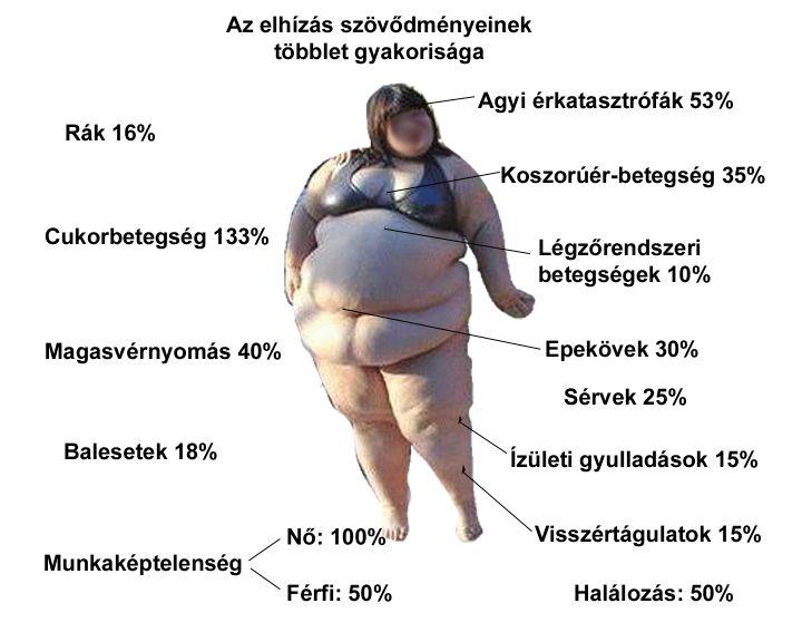 földi natalia magas vérnyomás)