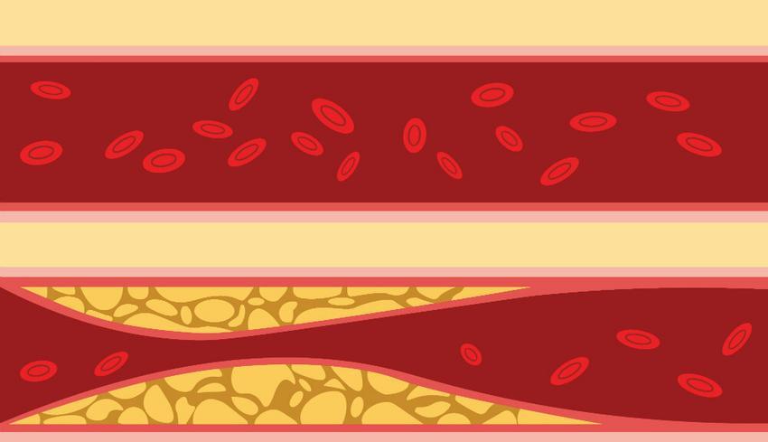 artéria szűkület és magas vérnyomás