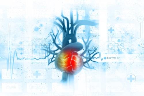 magas vérnyomás angina után