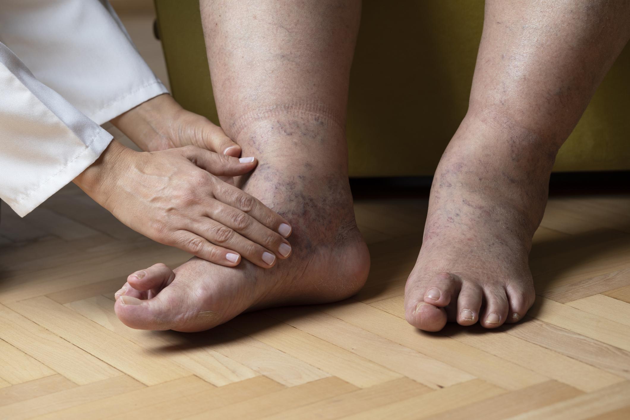 a lábak duzzanata magas vérnyomás)