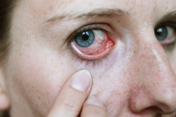 a szemek közepes vérnyomása