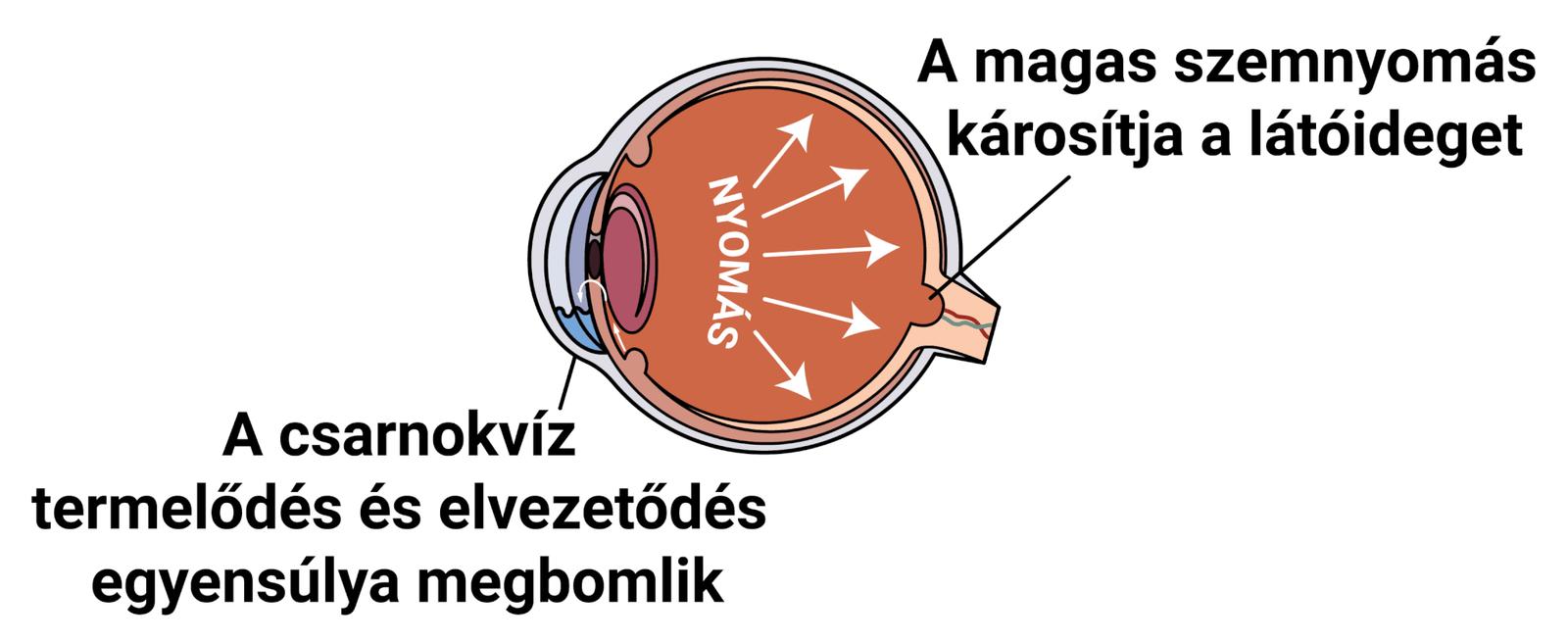 Zöldhályog tünetei, kezelése és okai (glaucoma) • hopmester.hu