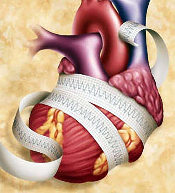 zsurló magas vérnyomás esetén a magas vérnyomás klinikai farmakológiája