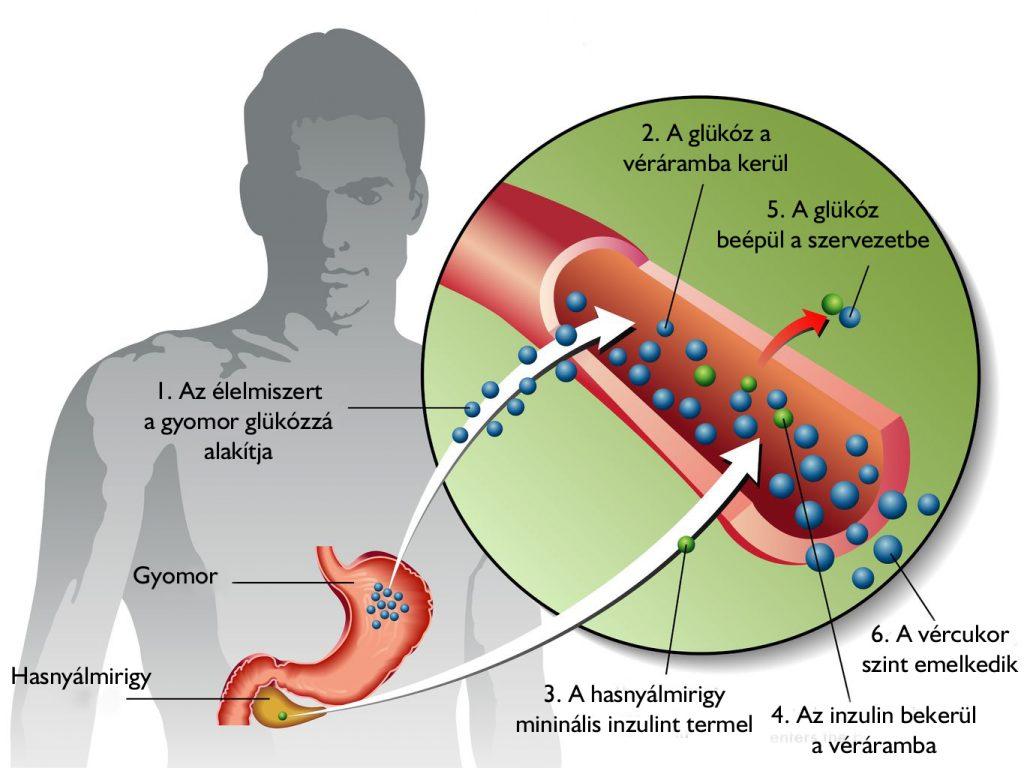 Cukorbetegség és magasvérnyomás