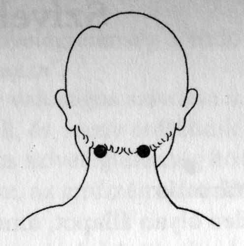 magas zaj a fejében magas vérnyomás kezelésére