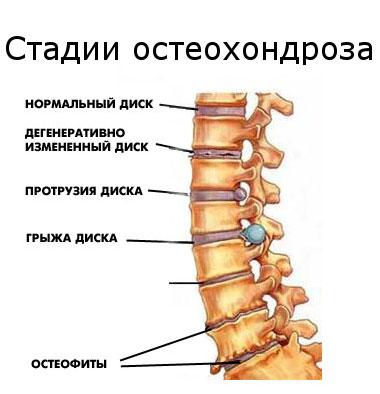 2 fokú nyaki gerinc osteochondrosis és magas vérnyomás