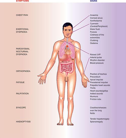 Magyar Nemzeti Szívalapítvány - Érbetegségek - Aorta aneurysma (tágulat)