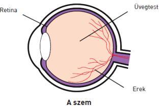 cukorbetegség magas vérnyomás retinopátia magas vérnyomás kezelésére cukorbetegségben
