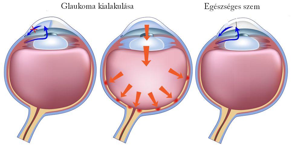 galagonya és a szív és a magas vérnyomás receptjei a magas vérnyomás kockázati tényezőinek korrekciója