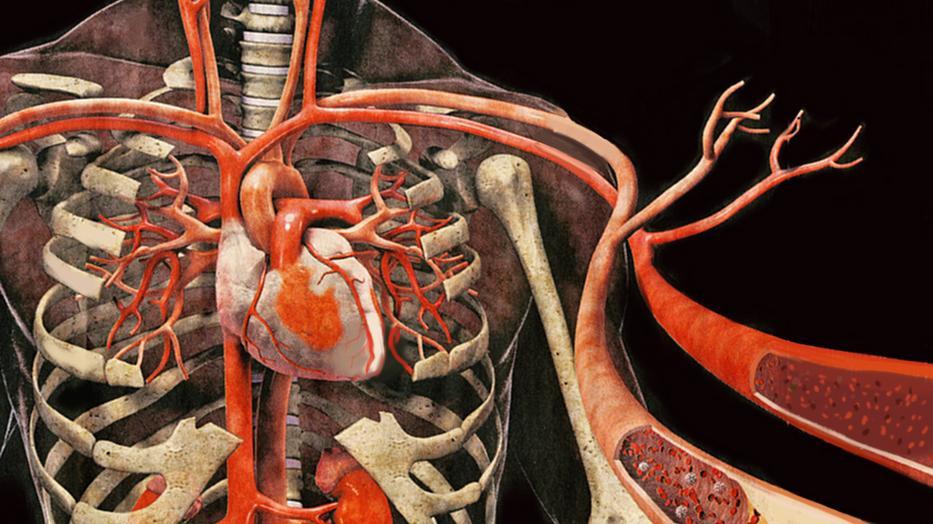 mi a magas vérnyomás vibroakusztikus terápiája