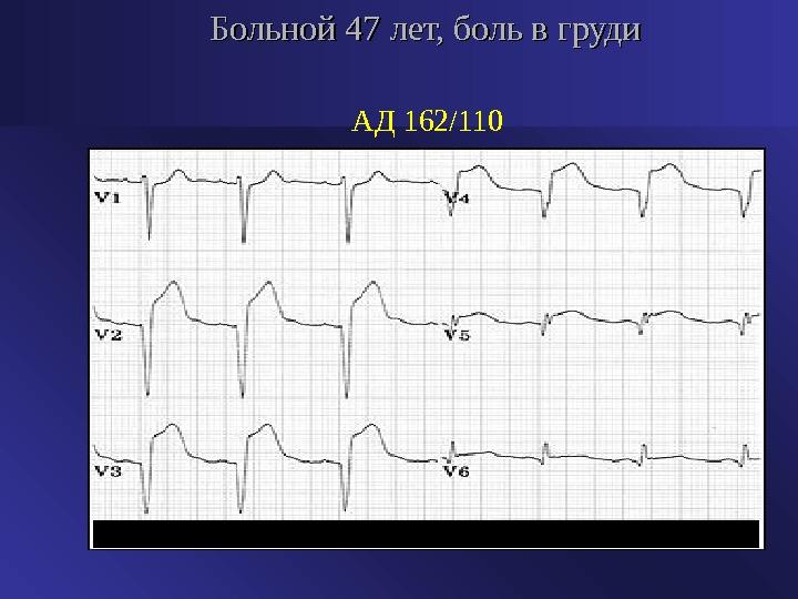 hipertónia adrenerg blokkolókban sürgősségi ellátás magas vérnyomás