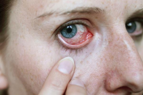hogy a hipertónia milyen hatással van a szemre)